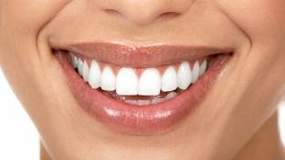 Клинике. Уз-чистка или профессиональная гигиена полости рта с airflow для одного или двоих в стоматологической клинике «Доктор берлиналь» -70% - купон в Екатеринбурге