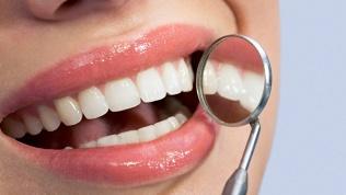Чистка иполировка зубов