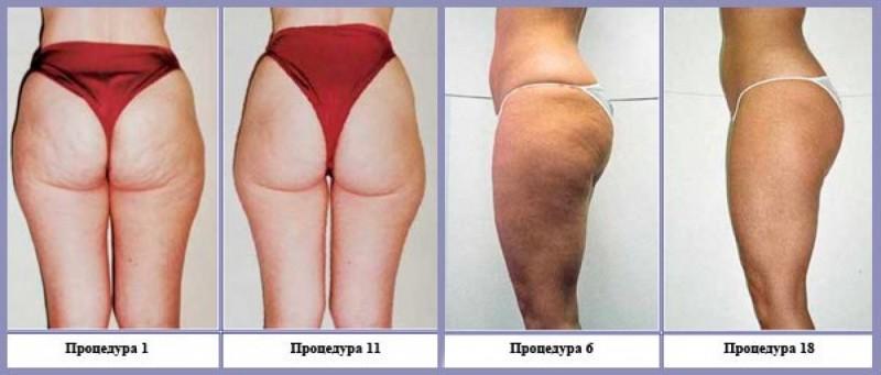 Фото до и после вакуумного массажа от целлюлита