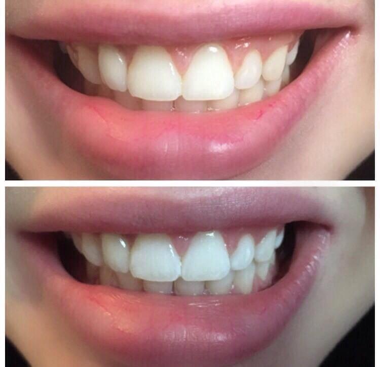 Как сделать зубы светлей 482