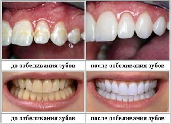 Эффект от лазерного отбеливания зубов и после отбеливания zoom 3