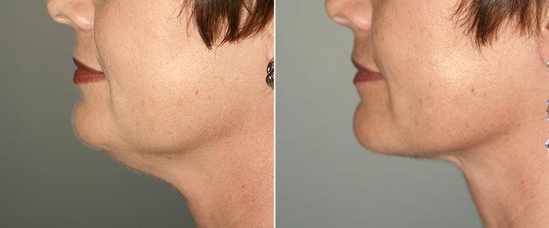 Подтяжка кожи лица или шеи