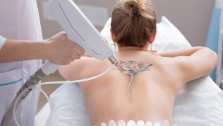 Лазерное удаление татуажа