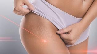 Лазерное удаление шрамов