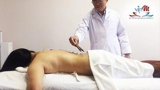 Иглорефлексотерапия