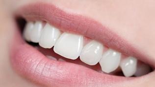 Чистка, отбеливание зубов