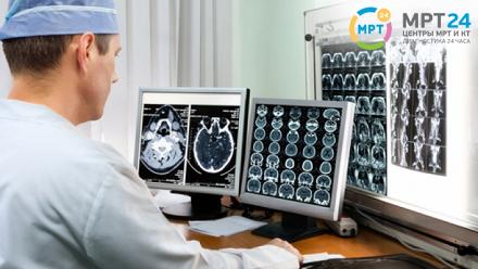 МРТ-обследование, МР-ангиография вцентре «МРТ24»