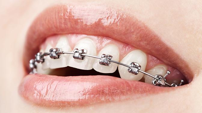 Установка брекет-системы вклинике эстетической стоматологии «Центр инновационных технологий»