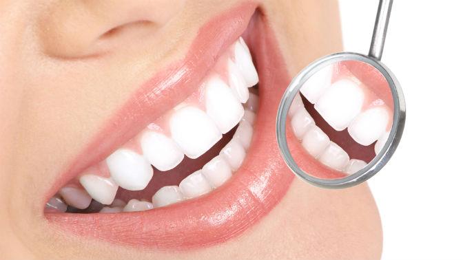 Чистка зубов AirFlow, ультразвуковая чистка, полировка ишлифовка зубов либо комплексная гигиена полости рта встоматологии «Смайл»