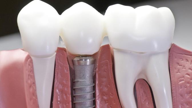 Установка дентального имплантата ипослеоперационное наблюдение встоматологии «Улыбка» (12500руб. вместо 25000руб.)