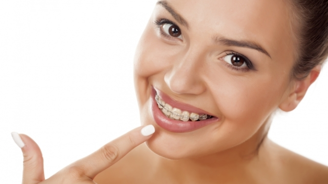 Установка брекетов встоматологической клинике «Кристалл»