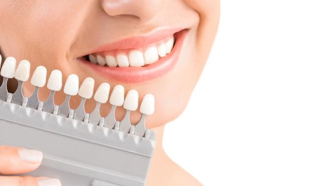 Отбеливание зубов, реминерализация отстудии Star Smile