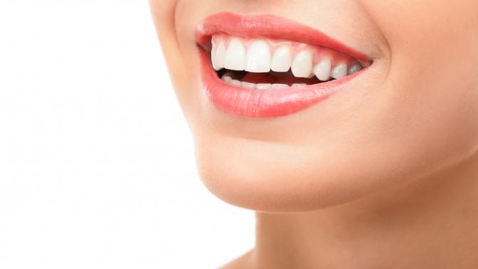 Отбеливание зубов Express, Classic или Premium встудии Mango