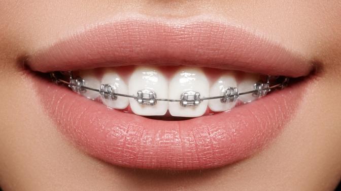 Установка брекет-системы, чистка эмалевой поверхности, снятие слепков иснятие брекетов встоматологической клинике Domini Dent