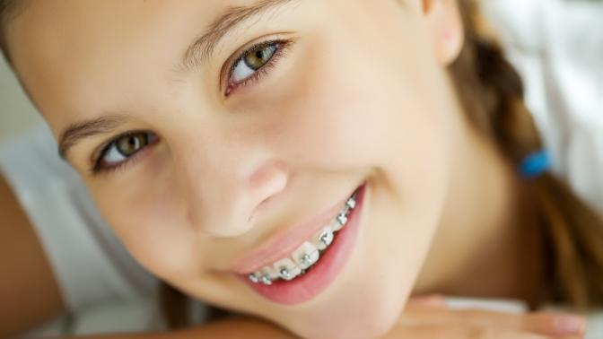 Установка брекет-системы, чистка эмалевой поверхности, снятие слепков иснятие брекетов встоматологической клинике MGClinic